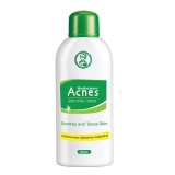 Acnes Soothing Toner,  90 ml  Acne Preventive (Pack of 2)
